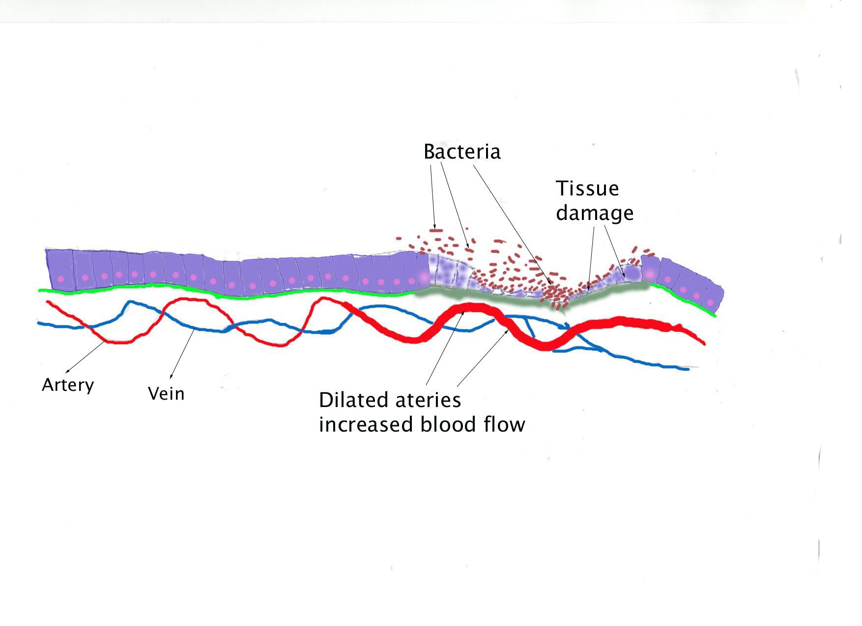 Bacteria causes tissue detruction